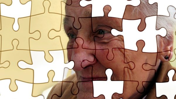 Alzheimer e demência - projeto SP